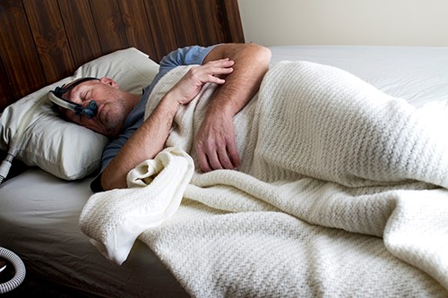 Sleep apnea flagged as potential trigger for Alzheimer's