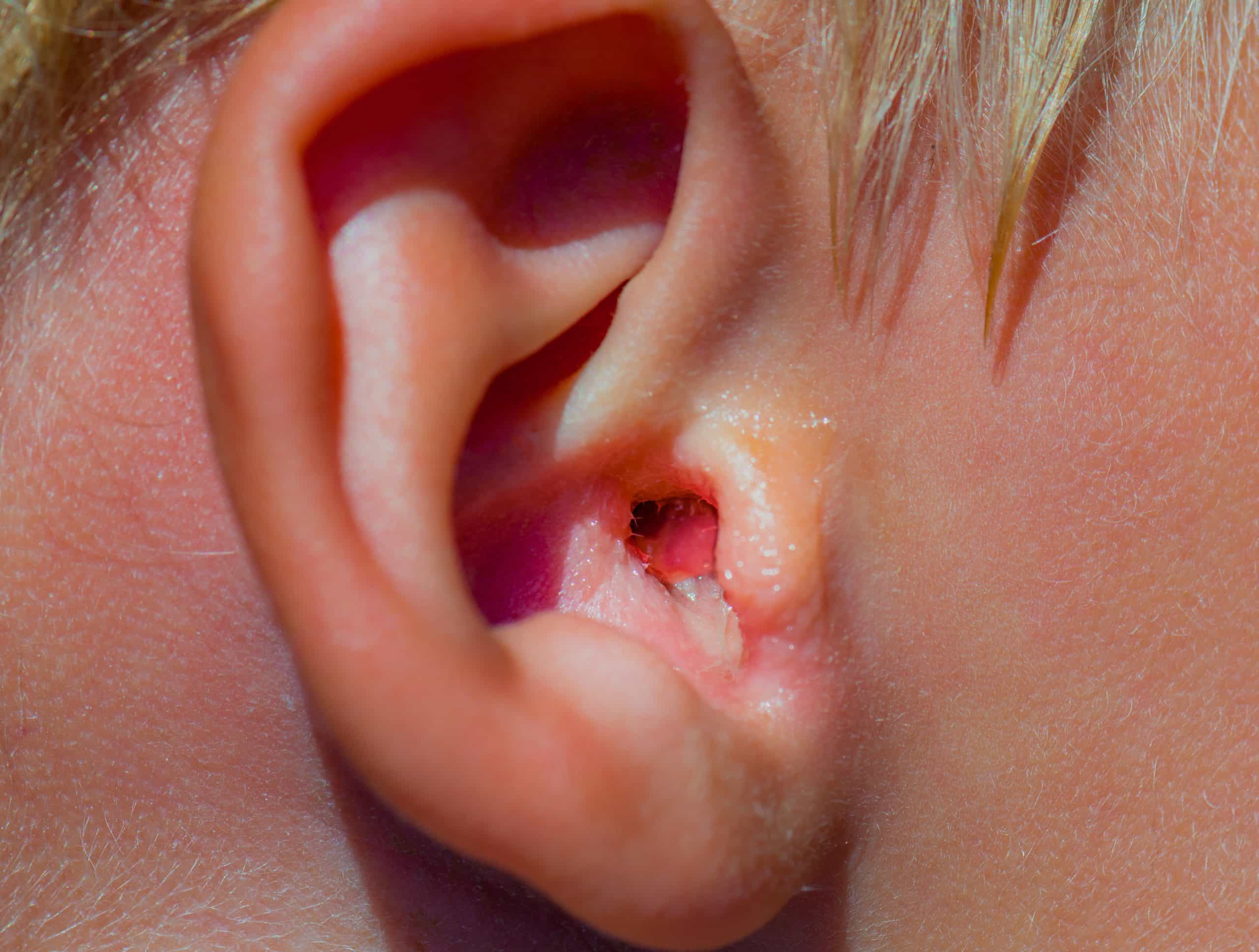 swimmers ear infection